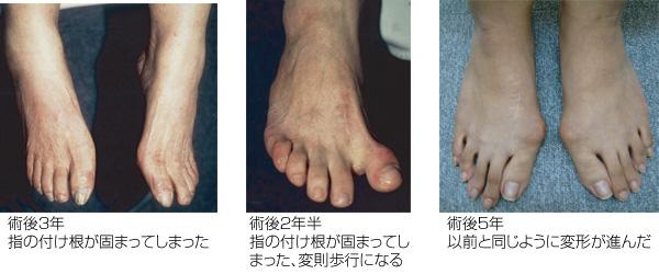 外反母趾の手術をお考えの方へ、自宅で簡単に治すことができます