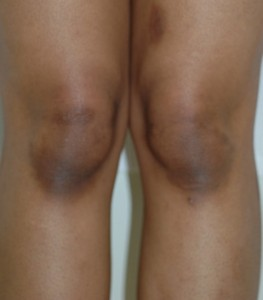 膝の黒ずみをとる方法!あなたの膝は汚い?!