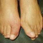 外反母趾とは – あなたの足は大丈夫?