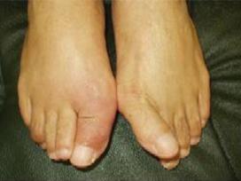 外反母趾とは - あなたの足は大丈夫?