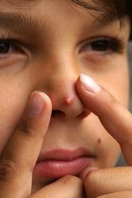 緊急事態?!鼻にきびの原因と治し方