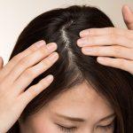 頭に触れた時に痛い!「頭皮ニキビ」の3つの原因と治し方