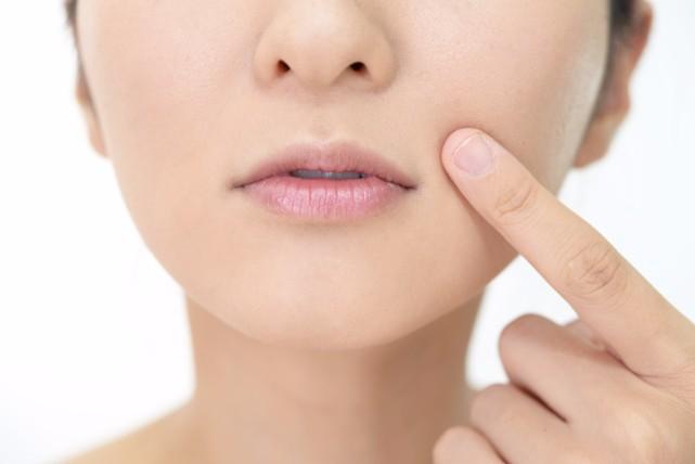 身近なところに原因が潜んでる?唇が黒い5つの原因と改善する方法