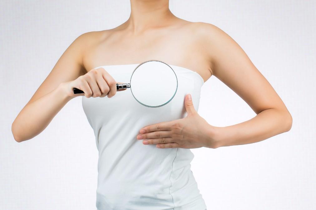 早期発見なら9割以上が完治!絶対見逃せない乳がんの初期症状