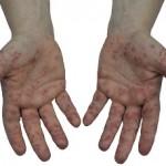 大人もかかる手足口病、原因と対策