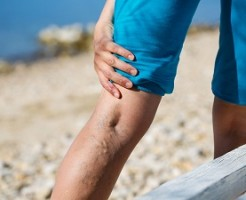 脚の血管がぼこぼこになる下肢静脈瘤の原因と予防