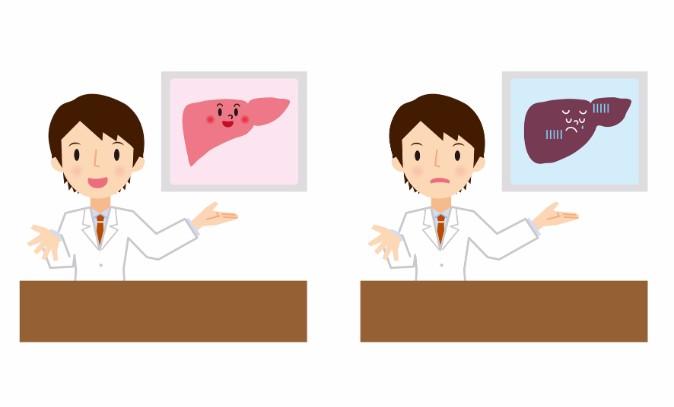 自覚症状がないからこそ怖い「脂肪肝」を自力で改善する方法4つ