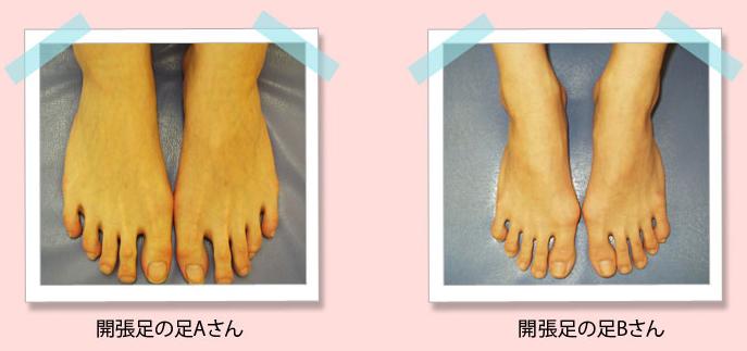 外反母趾の原因とは?なりやすい人の特徴について