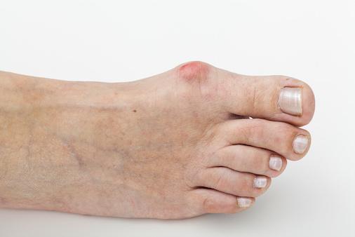 外反母趾 の 治し方 、 自宅 で できる マッサージ